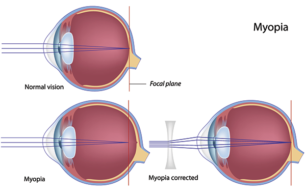 Myopia Nearsightedness in Pomona